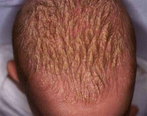 tengo costras en el cuero cabelludo tag cuero cabelludo del beb 233