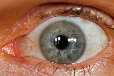 cataract surgery cataract surgery with crystalens my detailed review experience