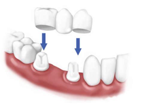 ponti mobili denti protesi dentali dott walter renda