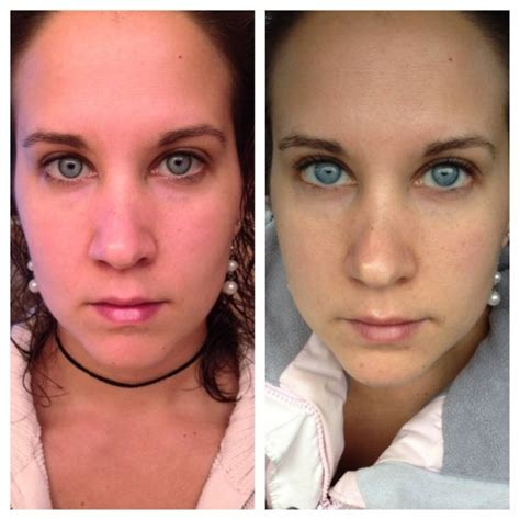 30 day water fast before and after pictures to pin on