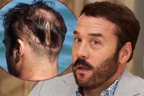 female celebrities with receding hairline celebrities who are covering up their bald spots