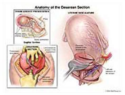 dvt after c section anatomy of the cesarean section medical illustration