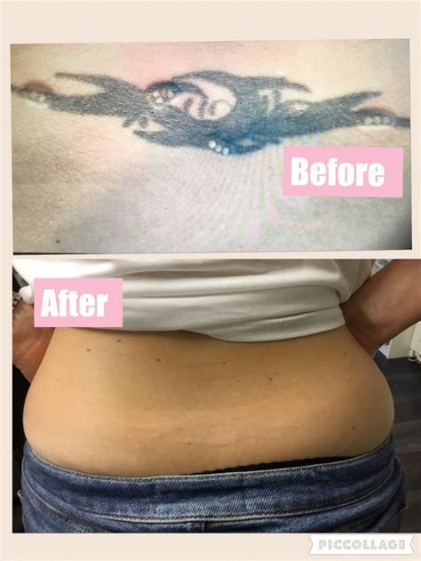 tattoo removal manchester laser and hair removal clinic in manchester