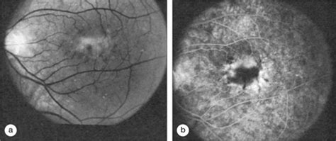 pattern dystrophy fluorescein angiography age related macular degeneration drusen and geographic