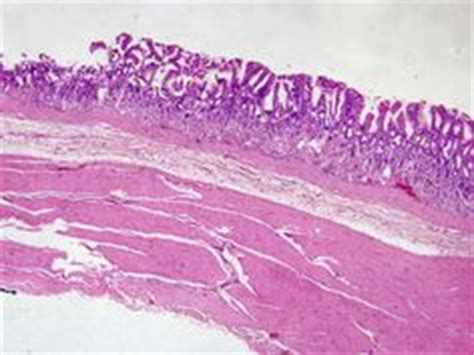 Asbestosis Pathology Outlines by Reinke Crystals Leydig Cell Tumor Small World Kristaller