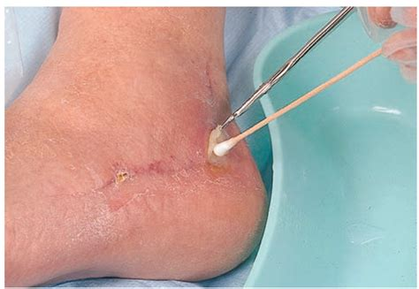 best treatment for open wounds open wound healing images