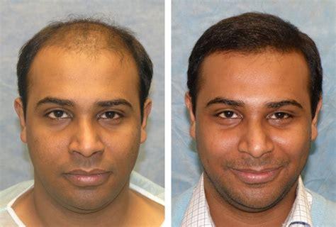 hair transplant america best hair transplant doctors in america hair transplant