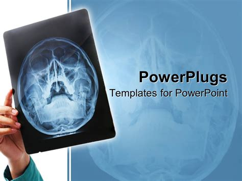 powerpoint template hand holding up x ray scan of human
