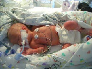 the nicu: what to expect | the baby standard: a self help
