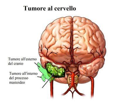 mal di testa parte sinistra e occhio mal di testa da cervicale o dietro agli occhi collo muscoli