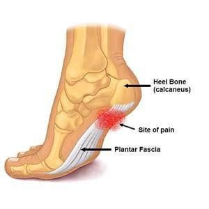 Can Foot Detox Help With Plantar Fasciitis by For Plantar Fasciitis Solace Day Spa