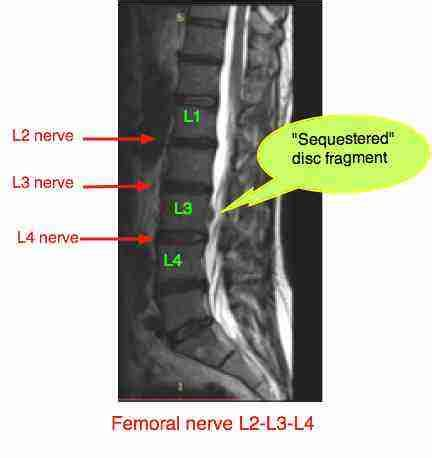 lateral disc herniation creates something of a dilemma for