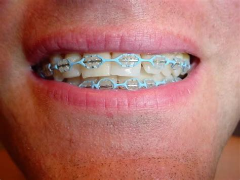 17 best images about clear clear braces colored bands www pixshark images galleries with a bite