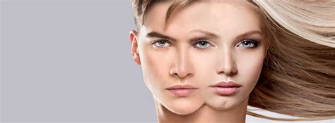 facial masculinization surgery facial feminization facialfeminization
