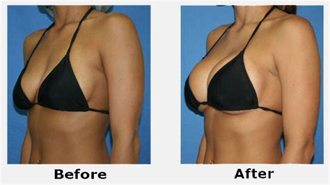 Breast Implant Meme - cho con b 250 ngực chảy xệ bvtm 193 194 u