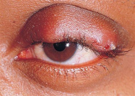 calazio interno orzaiolo cause e fattori di rischio sintomi cura e