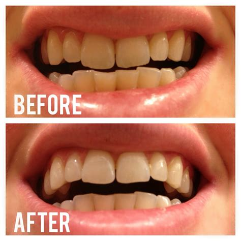 Foe 2 Whitening Day does activated charcoal teeth whitening works you need to