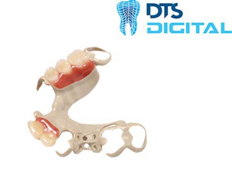 dental design lab glasgow digital choices dts international