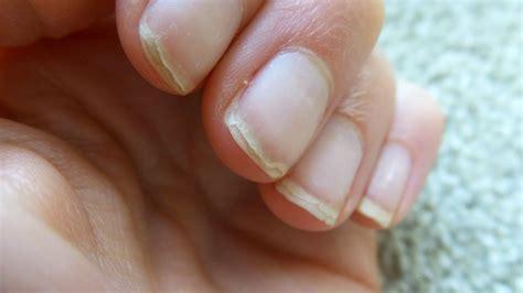 Nail Treatments by Nail Treatments For Damaged Nails Eltoria