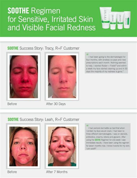 7 Ways To Soothe Skin Irritations by 1000 Images About Sensitive Skin On