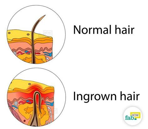 ingrown hair diagram how to remove an ingrown hair quickly without laser fab how