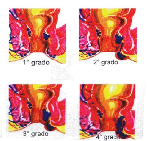 sintomi prolasso rettale interno classificazione prolasso delle emorroidi in gradi