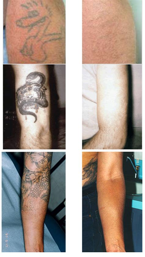 laser tattoo removal cost tattoo collections