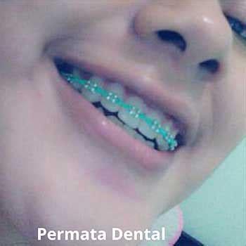 Gigi Palsu Gigi Tonggos ahli gigi bali permata dental behel bracket kawat