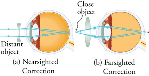 ray diagram nearsighted eye images how to guide and refrence