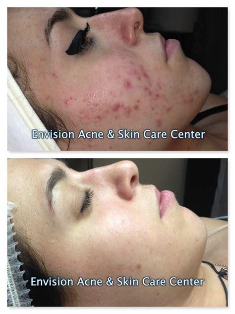 Toner Spl Skincare Acne Light before after skin care acne treatment client exles