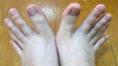 las oscuras manos del 8467915366 la historia de la joven que tiene dedos de manos en los pies telemundo