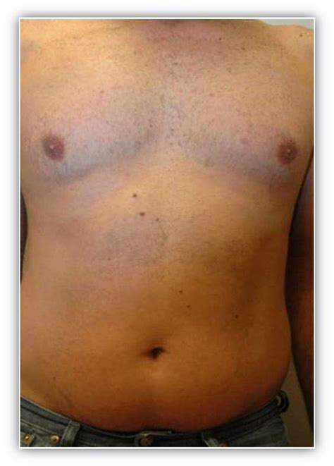 tattoo removal light laser hair removal bay area tatoo removal marin county