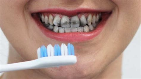 review  charcoal teeth whitening toothpaste