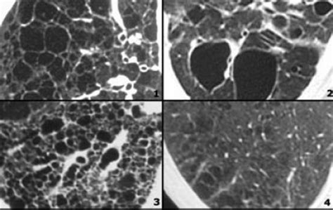 mosaic pattern ground glass opacity the radiology assistant lung hrct basic interpretation