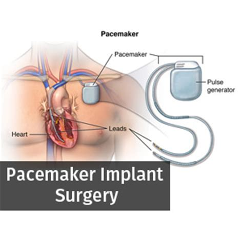 Different Available Options for Pacemaker Implant Surgery ... Pacemaker Surgery