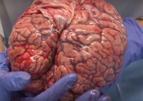 re brains human brain www pixshark com images galleries with a bite