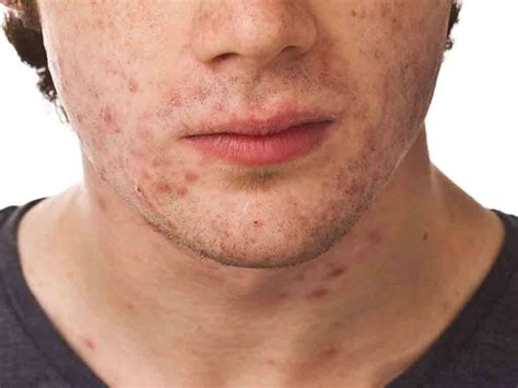 hairstyles for men with acne adult acne treatments for men adult acne treatments for