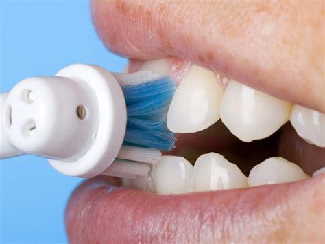 Membersihkan Karang Gigi enam cara membersihkan karang gigi secara tradisional