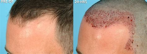 prescreened hair transplant physicians success rate of hair transplant hairstylegalleries com
