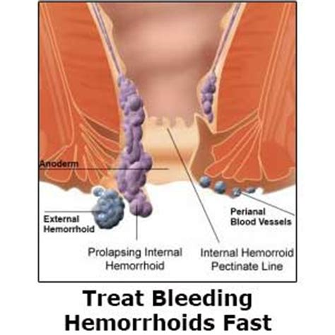 what causes piles how long should you bleed after giving how to treat bleeding hemorrhoids fast 7 healing methods