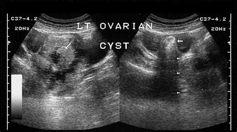 Does Womb Detox Works For Dermoid Cyst by What Is An Ovarian Cyst Babyq