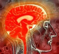imagenes retardo mental definici 243 n de retardo mental qu 233 es significado y concepto