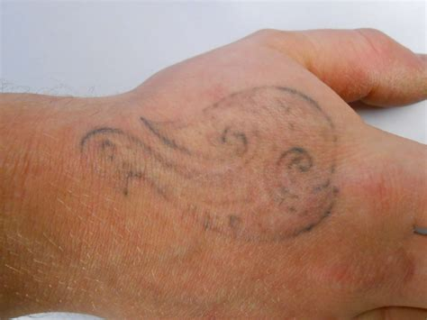 tattoo removal scarring how to reduce the possibility of scarring after your