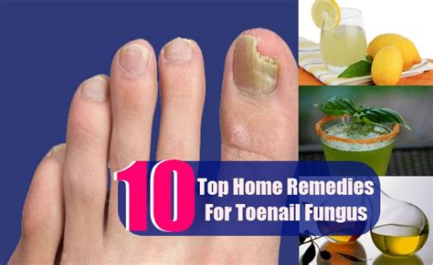 10 top home remedies for toenail fungus care health