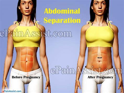 abdominal separationcausessymptomstreatmentexercise