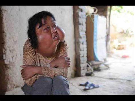 imagenes las personas con poem las 15 enfermedades mas raras y extra 241 as del mundo youtube