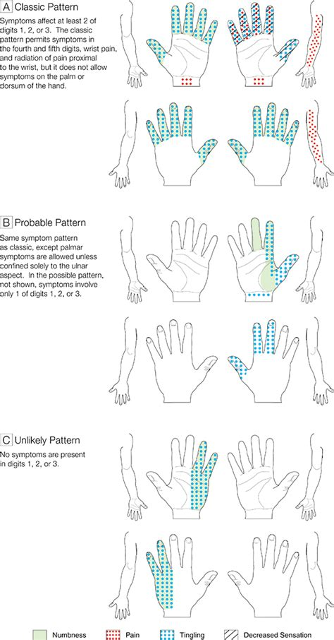 patient  carpal tunnel syndrome neurology