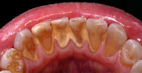 tartaro dei denti: sbarazzati del dentista con i rimedi