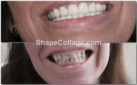 dental center alanya dentist turkey implants  teeth