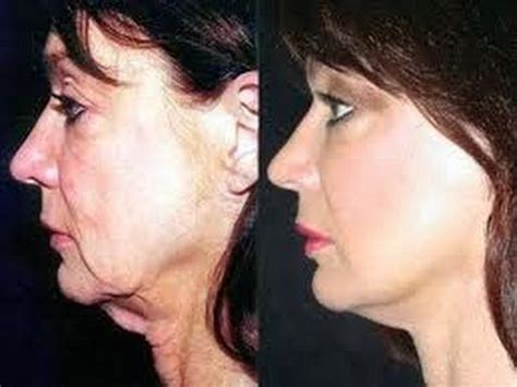 sagging jowls treatments for sagging jowls jowl reduction 1000 ideas about neck lift on pinterest neck exercises